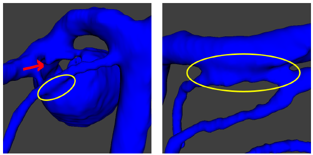 Figure 5. Common problems on a segmentation: Melting arterial aneurysm (left), incomplete filling of contrast within the aneurysm (red arrow), and fusion artery-artery (right).