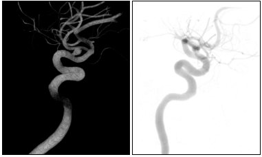 Figure 2. Volume rendering angiography imaging techniques using 3D Texture Mapping and GPU-acceleration (left) and 2D Texture Mapping technique which simulates the X-ray acquisition (right)