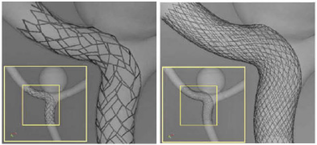 Figure 11. Enterprise release of a stent (left) and a stent SILK (right) within an idealized geometry of a bifurcation aneurysm. Figure adapted from [7].